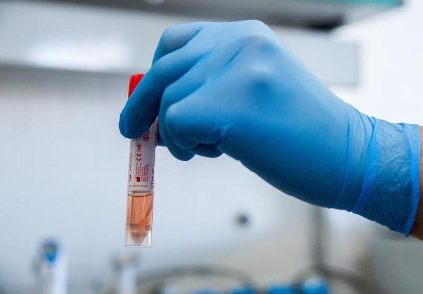 KORONAVIRUS Potvrđen novi slučaj zaraze u BBŽ-u