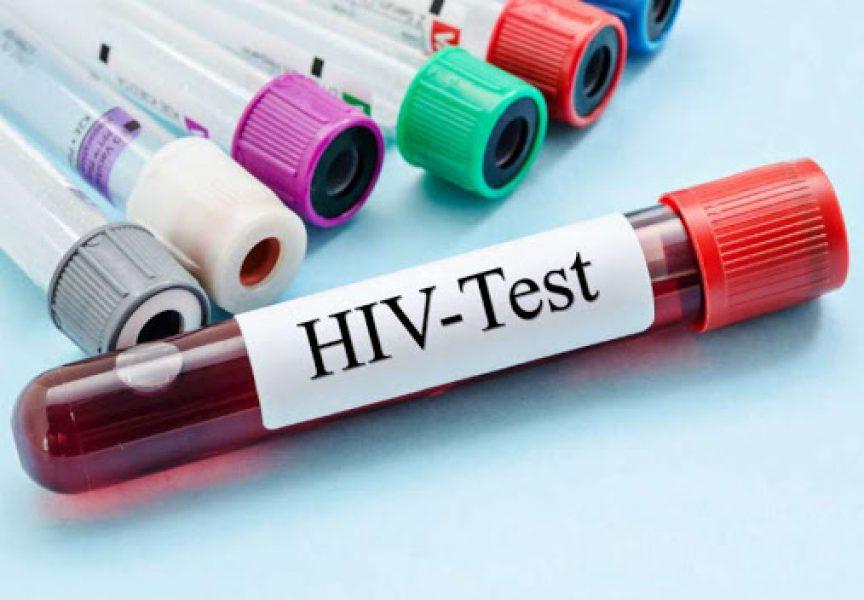 Ove godine bez novozaraženih HIV-om u Bjelovarsko – bilogorskoj županiji
